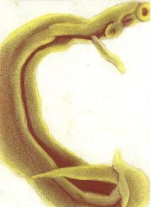 Viermele de galbeaza - Paraziti intestinali - Protocol deparazitare - Produse Naturiste Provita